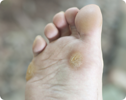 photo of a bare foot covered in warts