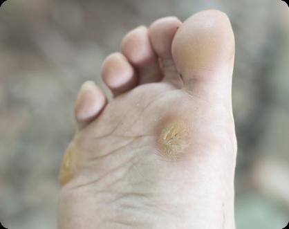 Nasal warts treatment Preparate parazitare de curățare a corpului