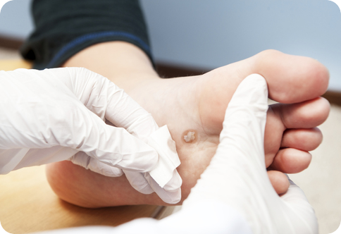 A Podiatry Healthcare Group Podiatrist examines a wart on a patients foot